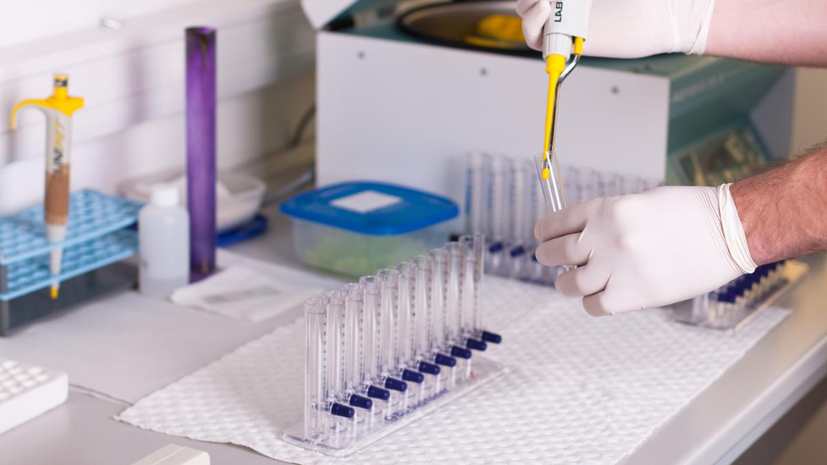 Laboratorijske pretrage u Medico Pula