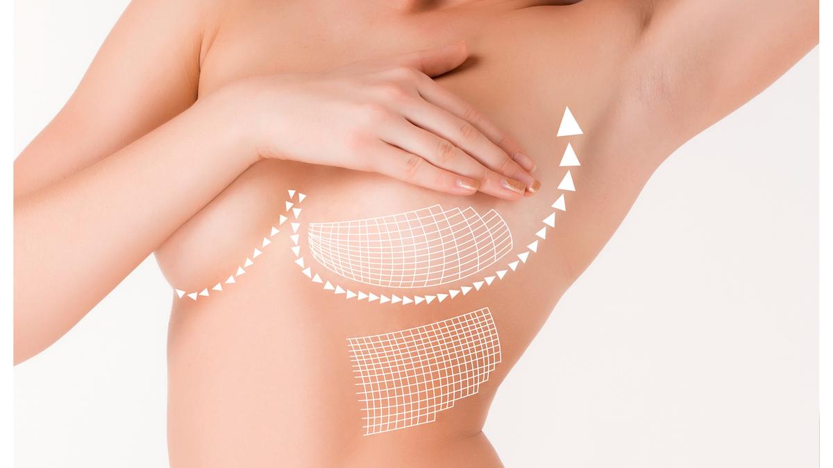 Besplatan pregled za estetske operacije grudi