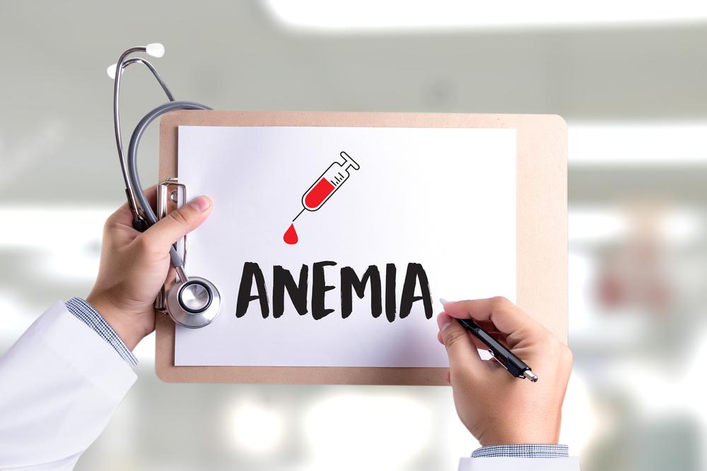 Anemija pogađa 30 posto stanovništva! Kako do dijagnoze ako sumnjate na ovu bolest?
